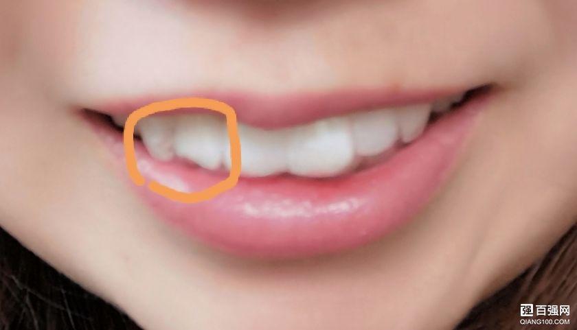 整牙丨考虑再三,终于鼓起勇气来整牙了(持续更新)